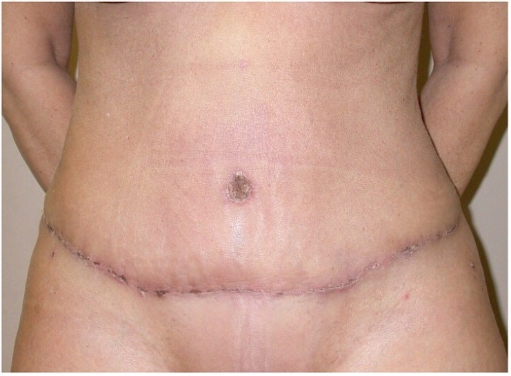 After-ABDOMINOPLASTIE