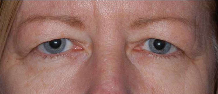 Before-BLEFAROPLASTIE