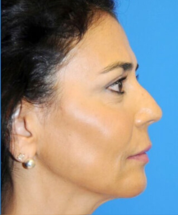 After-LIFTING FACIAL