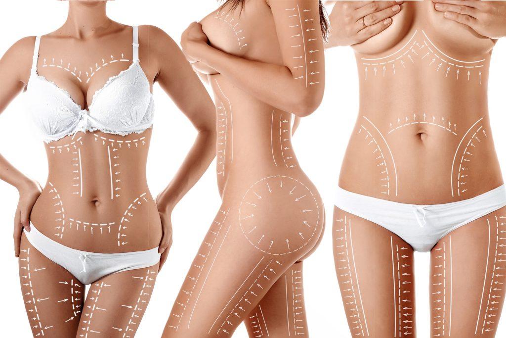 Liposuctie - Dr Alina Pastrav